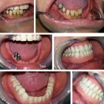 Zubna laboratorija Bulic8.jpg