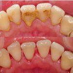 Branko Dental Tehno 4.jpg