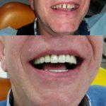 Kruna dental 14.jpg