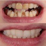 Branko Dental Tehno 13.jpg