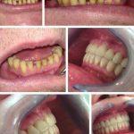 Zubna laboratorija Bulic12.jpg