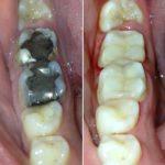 Branko Dental Tehno 15.jpg