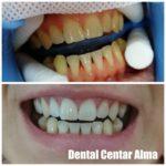 Dental Centar Alma 7.jpg