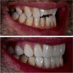 Branko Dental Tehno 14.jpg