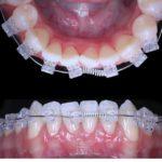 Branko Dental Tehno 17.jpg