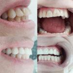 Dentalex 10.jpg