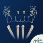 MIS Implants Technologies Ltd. 21.jpg