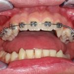 Kruna dental 18.jpg