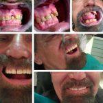 Zubna laboratorija Bulic7.jpg