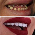 BS Dental Tehno 4.jpg