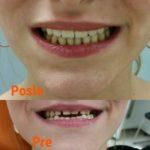 Kruna dental 12.jpg