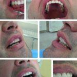 Zubna laboratorija Bulic11.jpg