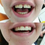 Kruna dental 13.jpg