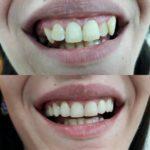 Kruna dental 9.jpg