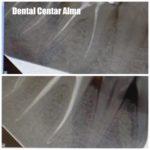 Dental Centar Alma 4.jpg
