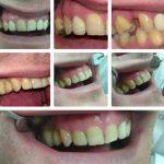 Zubna laboratorija Bulic10.jpg
