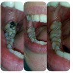Kruna dental 17.jpg