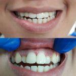 Kruna dental 20.jpg