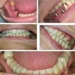 Zubna laboratorija Bulic9.jpg