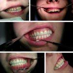 Zubna laboratorija Bulic3.jpg