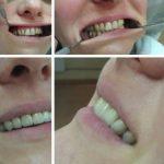 Zubna laboratorija Bulic2.jpg