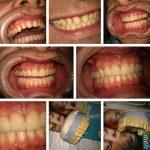 Zubna laboratorija Bulic5.jpg