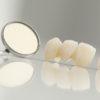 zubne krunice